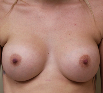 18-24 year old woman treated with Breast Augmentation after 3549816