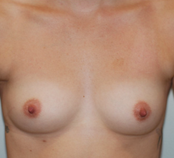 18-24 year old woman treated with Breast Augmentation before 3549816