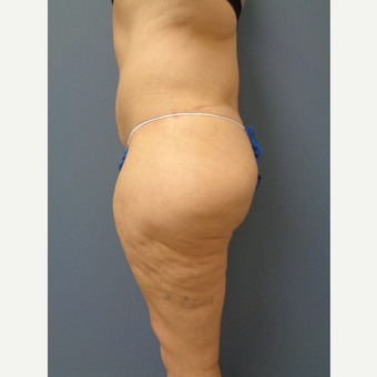 45-54 year old woman treated with Body Lift after 3747240