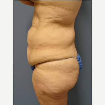 45-54 year old woman treated with Body Lift before 3747240