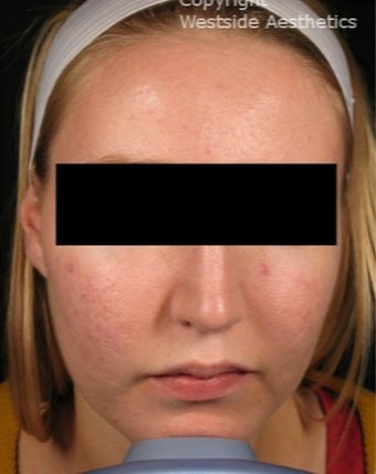 CO2 for Acne Scars before 3075693