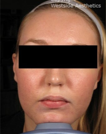 CO2 for Acne Scars after 3075693