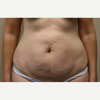 45-54 year old woman treated with Tummy Tuck before 2556403