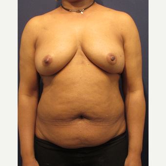 55-64 year old woman treated with Breast Reconstruction before 3691051