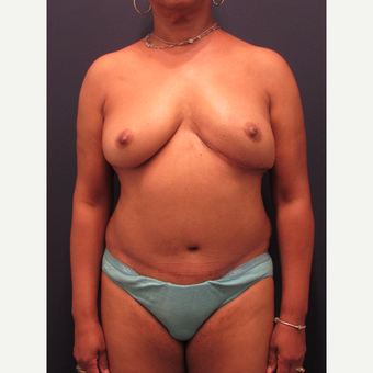 55-64 year old woman treated with Breast Reconstruction after 3691051