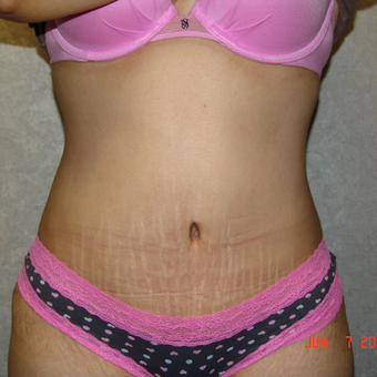 35-44 year old woman treated with Tummy Tuck after 3167689