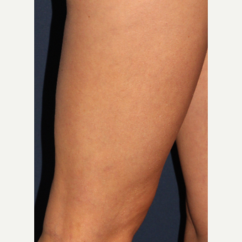 35-44 year old woman treated with Sclerotherapy after 3110213