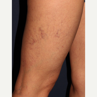 35-44 year old woman treated with Sclerotherapy before 3110213