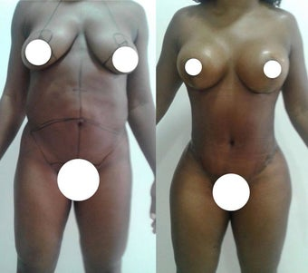 35-44 year old woman treated with Mommy Makeover before 2622547