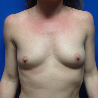 25-34 year old woman treated with Breast Augmentation before 3019117