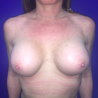25-34 year old woman treated with Breast Augmentation after 3019117