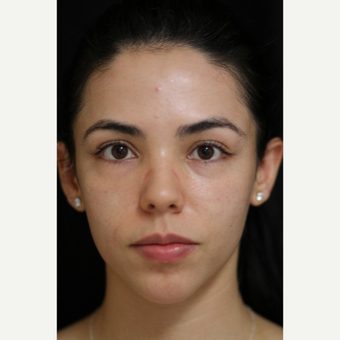 18-24 year old woman treated with Microneedling