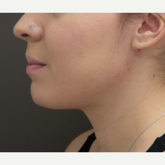 18-24 year old woman treated with Chin Liposuction after 3704046