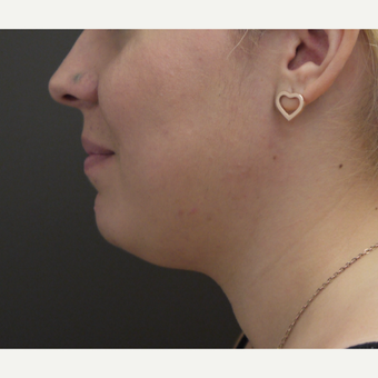 18-24 year old woman treated with Chin Liposuction before 3704046