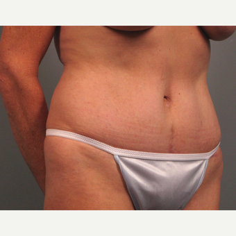 55-64 year old woman treated with Tummy Tuck after 3382615