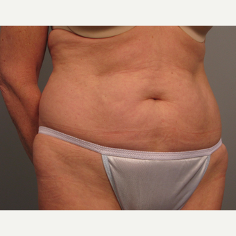 55-64 year old woman treated with Tummy Tuck before 3382615