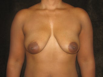 Direct to Implant Breast Reconstruction with Implant and AlloDerm before 469063