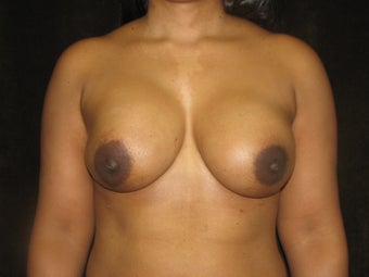 Direct to Implant Breast Reconstruction with Implant and AlloDerm after 469063
