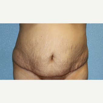 55-64 year old woman treated with Mini Tummy Tuck after 3215465