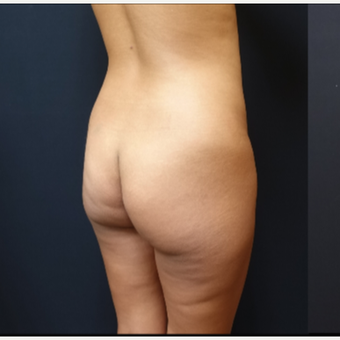 25-34 year old woman treated with Butt Implants before 3731696
