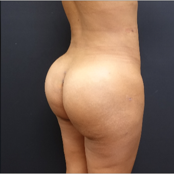 25-34 year old woman treated with Butt Implants after 3731696