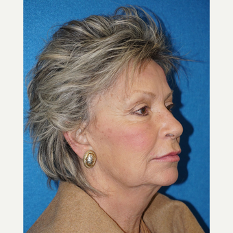 63 year old woman treated with Facelift before 3576617