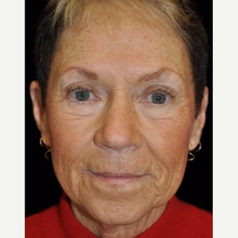 65-74 year old woman treated with Liquid Facelift before 1883951