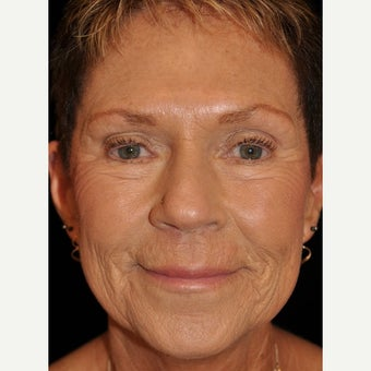 65-74 year old woman treated with Liquid Facelift after 1883951