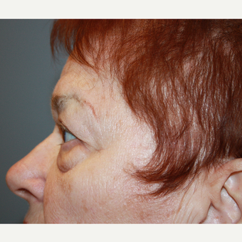 65-74 year old woman treated with Eyelid Surgery before 3709179
