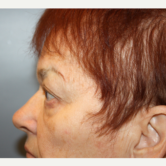 65-74 year old woman treated with Eyelid Surgery after 3709179