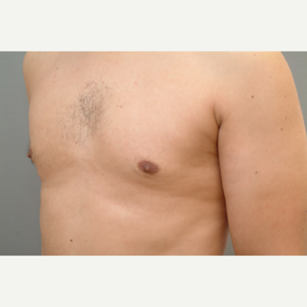 44 year old man treated with Male Breast Reduction after 3318225