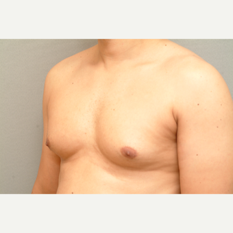 44 year old man treated with Male Breast Reduction before 3318225