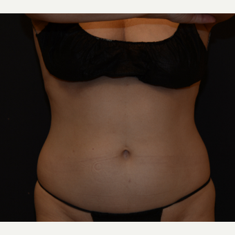 55-64 year old woman treated with CoolSculpting after 3815842