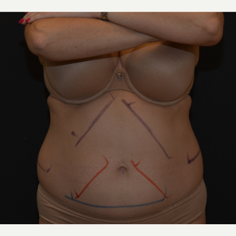 55-64 year old woman treated with CoolSculpting before 3815842
