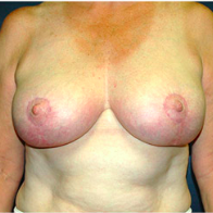 51 year old woman treated with Breast Lift after 3665917