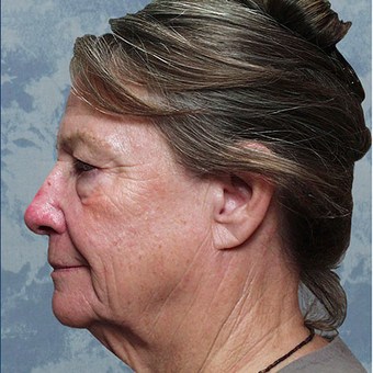 Facelift before 3126344