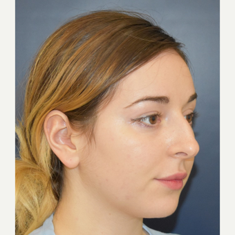 18-24 year old woman treated with Rhinoplasty before 3341295