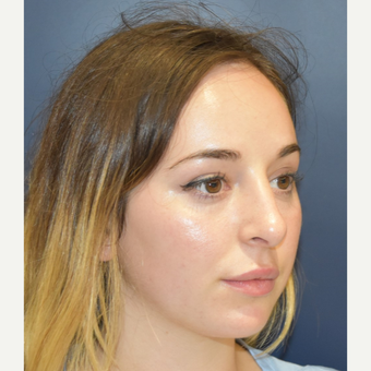 18-24 year old woman treated with Rhinoplasty after 3341295