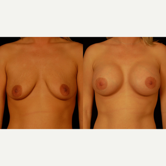 25-34 year old woman treated with Breast Implants before 3659734