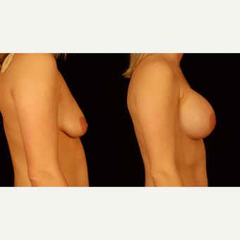 25-34 year old woman treated with Breast Implants after 3659734