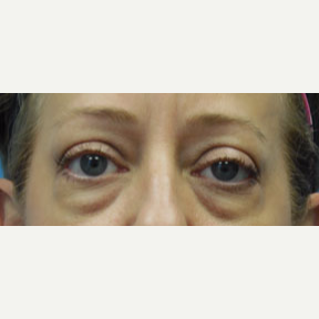 54 year old woman treated with Eyelid Surgery before 3141028