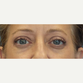 54 year old woman treated with Eyelid Surgery after 3141028