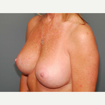 49 y/o Inframammary Sub Muscular Breast Augmentation after 3066045