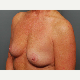 49 y/o Inframammary Sub Muscular Breast Augmentation before 3066045
