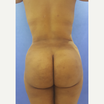 27 year old woman treated with Liposuction and Brazilian Butt Lift after 3396275