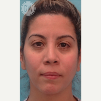 25-34 year old woman treated with Nose Surgery before 3477972