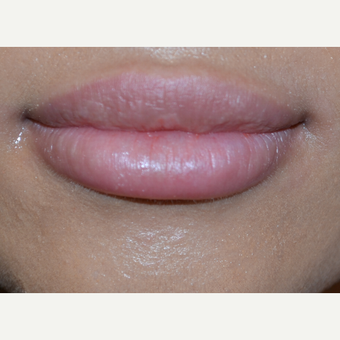 18-24 year old woman treated with Juvederm after 3809481