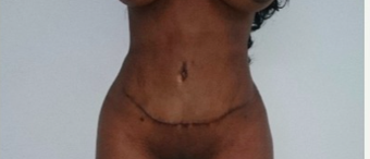 35-44 year old woman treated with Tummy Tuck Revision after 2475461
