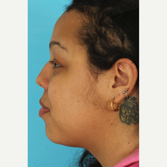 25-34 year old woman treated with Rhinoplasty before 3628936