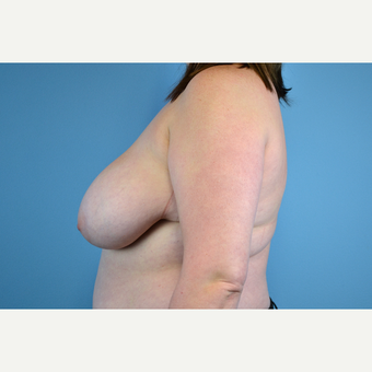 25-34 year old woman treated with Breast Reduction before 2998932
